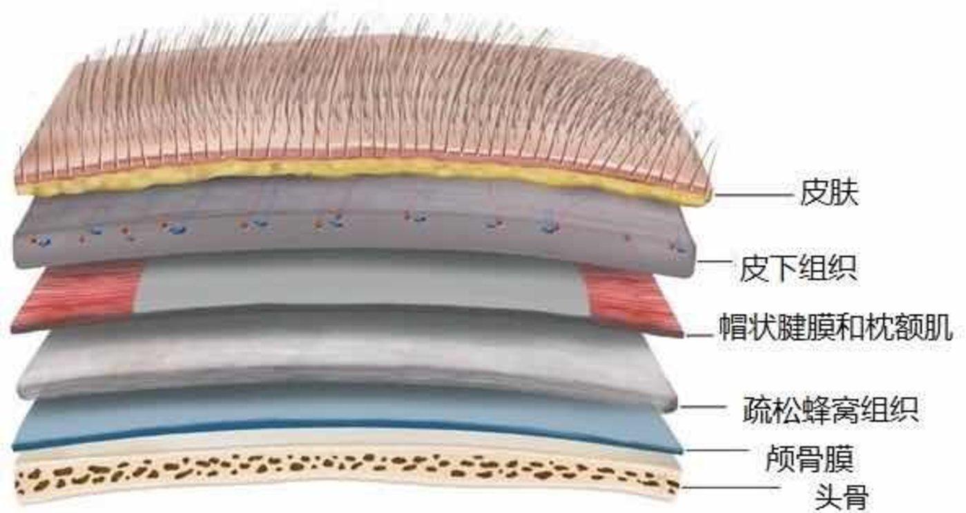 头皮头骨间组织结构