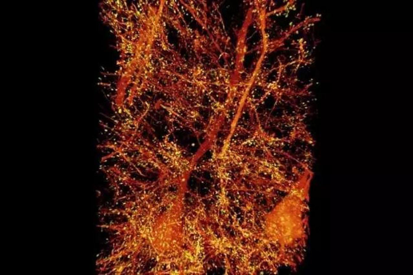 小鼠初级躯体感觉皮层中的锥体神经元(橙色部分),与突触后蛋白Homer1相关的树突棘用黄色突出显示。来源: MIT