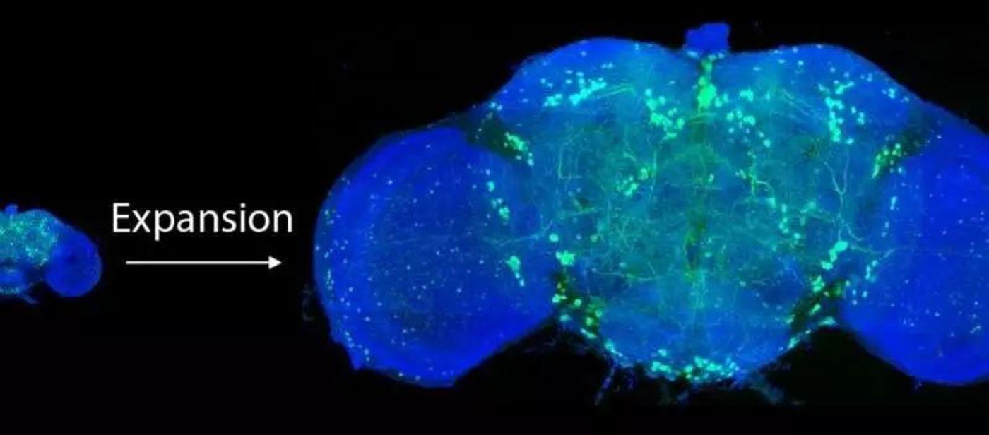 将果蝇的大脑扩大到正常大小的四倍后,科学家们利用晶格层光显微镜对所有多巴胺能神经元(绿色)进行成像。来源:Credit: Gao et al./Science 2019
