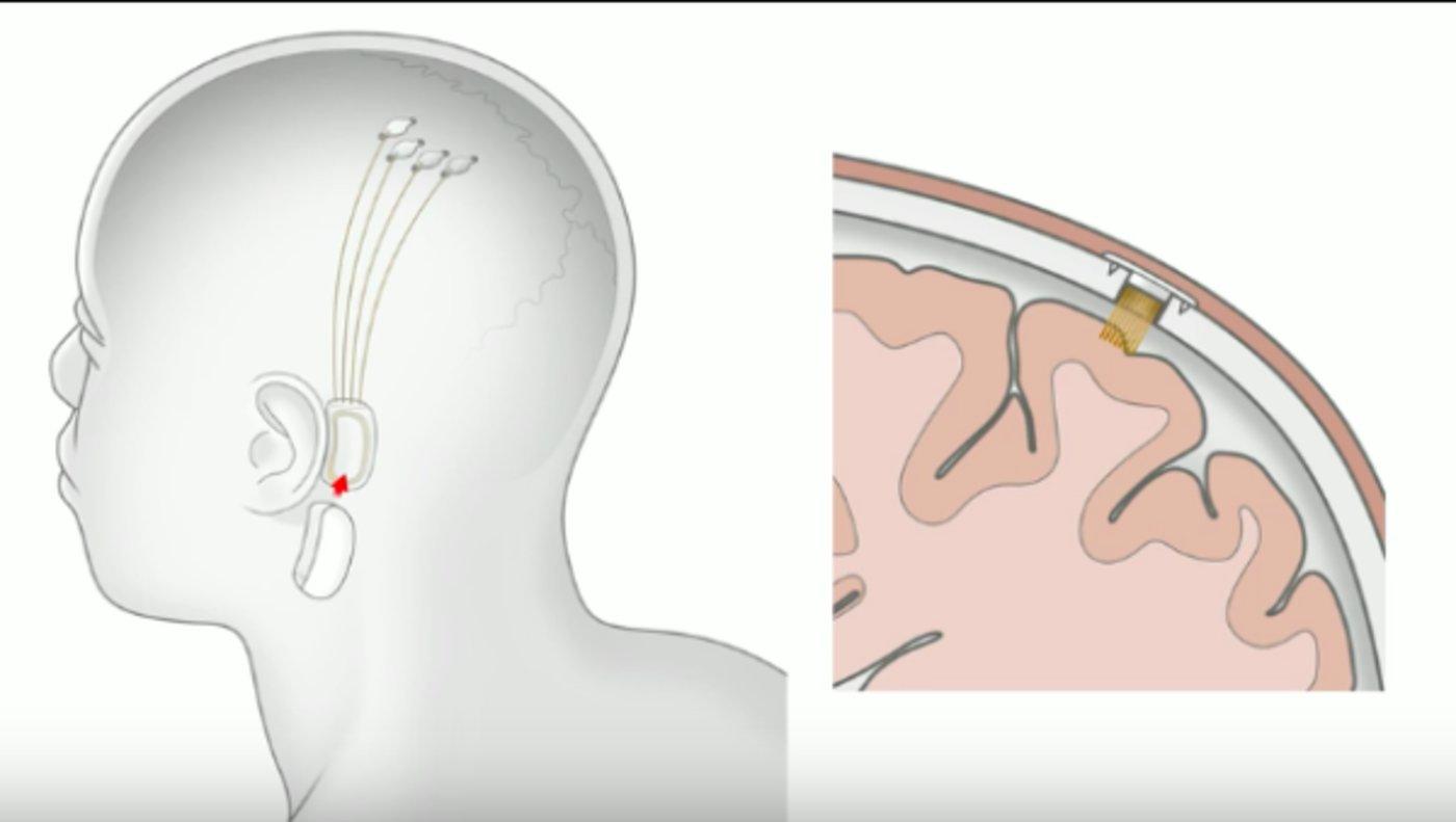 图为脑机接口示意图/马斯克指出猴子已经能用脑子控制电脑,这项技术将在2020年在人体试验。