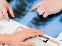 与时间赛跑,CT影像能否完全替代核酸筛查新冠肺炎?