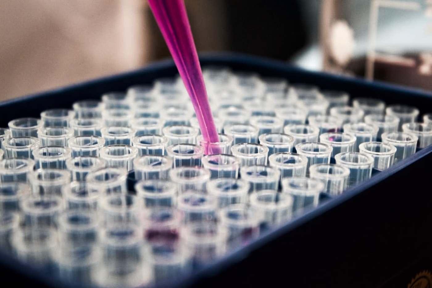 科学家在巴西发现全新神秘病毒,90的基因无法识别