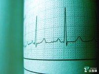 专注国产ICD器械研发,无双医疗获千万美元融资 | 钛快讯