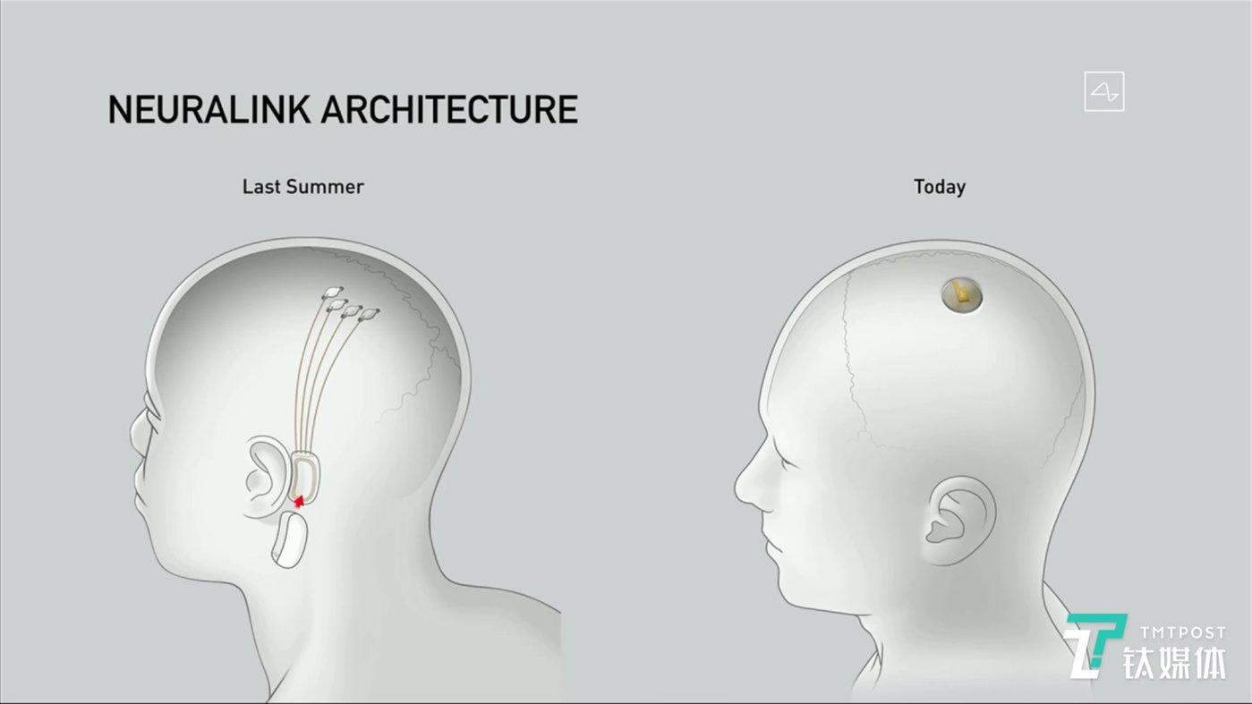 与去年展示的N1芯片相比,今年的设备大大简化,它不再需要放置在耳朵后面。