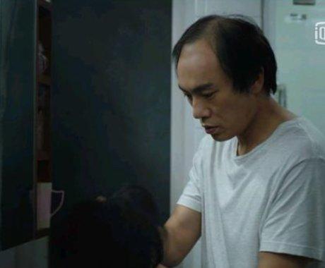 脱发困扰2.5亿中国人,植发这门暴利生意能撑多久?