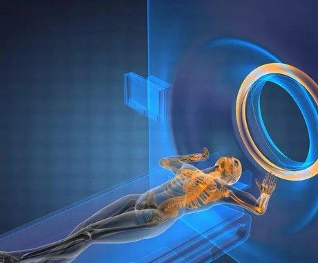 放疗之变下,癌症治疗持续发展