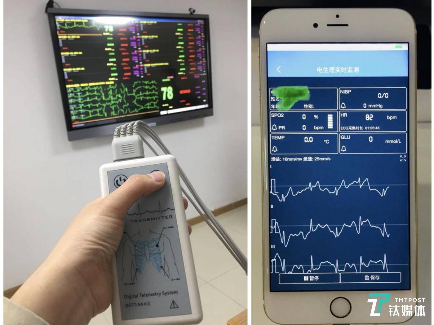 左图测心电图的仪器,可以投射到大屏幕上;右图为医生端的心电实施检测软件(图:钛媒体记者 付梦雯)